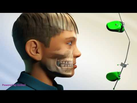 Moin Orthodontics - Protraction Headgear