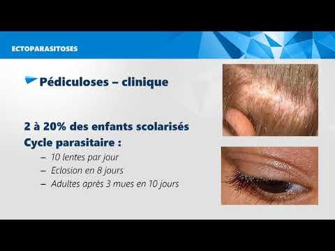 Conftube ECNi #82 - Infections parasitaires de la peau - Topo