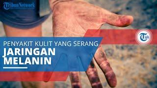 Symptoms, risk factors and treatments of Lentigo maligna melanoma (Medical Condition) Lentigo malign.