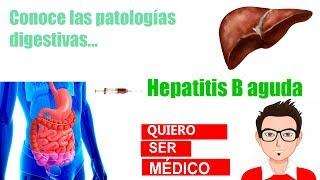 Hepatitis B Aguda