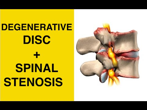 Sciatica Exercises / Stretches for Spinal Stenosis & Degenerative Disc Disease Treatment