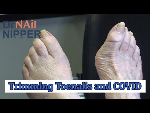 trimming-toenails-and-covid-on-a-callus-tuesday-(2020)