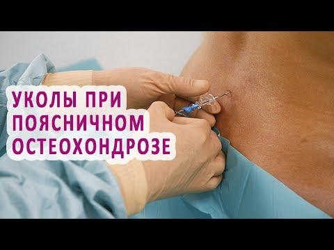 Уколы при остеохондрозе: шейного, поясничного, грудного отдела