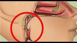 Évitez ces 4 aliments pour réduire le mucus dans la gorge