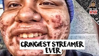 Mexican Andy - Cringiest Creepiest Streamer On Youtube / Twitch - L Of The Day