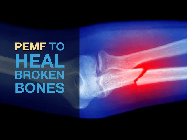 PEMF to Heal Broken Bones