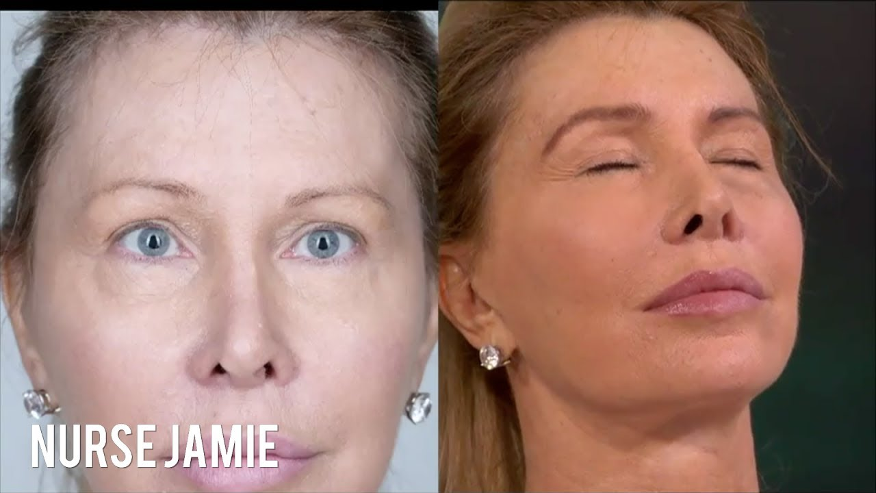 Before and After Eyebrow Threading | Nurse Jamie