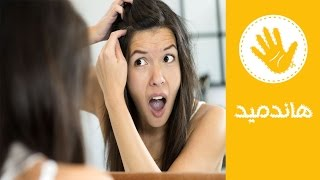 شاهد.. أفضل الطرق للتخلص من قشرة الشعر