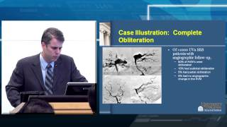 Radiosurgery for Arteriovenous Malformations