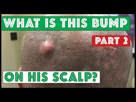 hqdefault - Bump On Scalp Feels Like Pimple