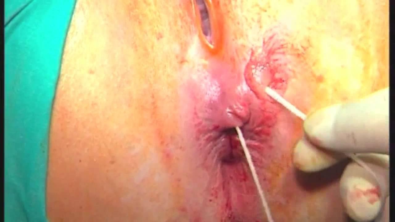 sign-of-rectal-fistula