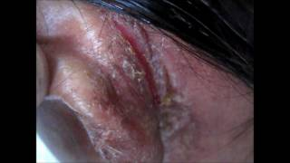 Ear Pinna Infected Dermatitis