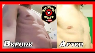 Gyno (puffy nipples, man boobs) treatment with diet. Before and After!