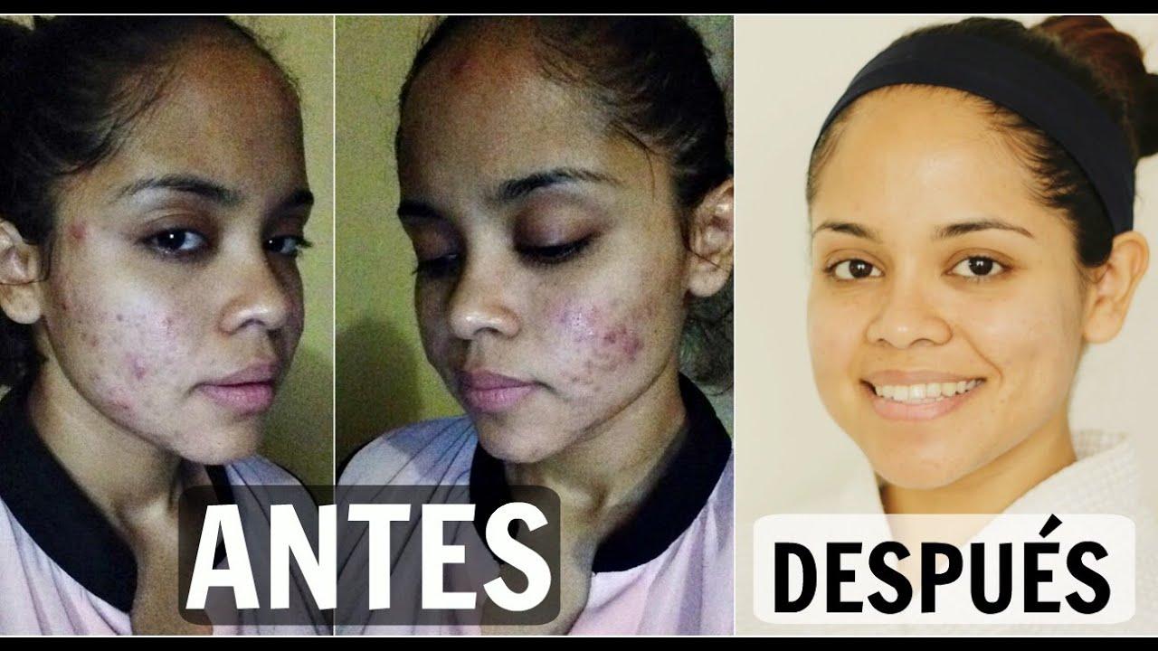 cura del acne hormonal