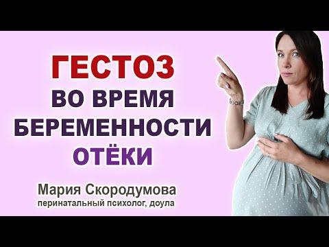 Почему опасен ГЕСТОЗ? Отеки при беременности.
