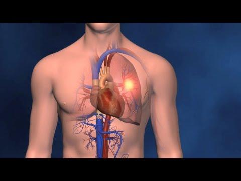 causas de coágulos de sangre en los pulmones