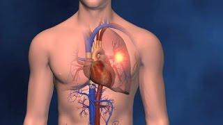 Pulmonar causa embolia