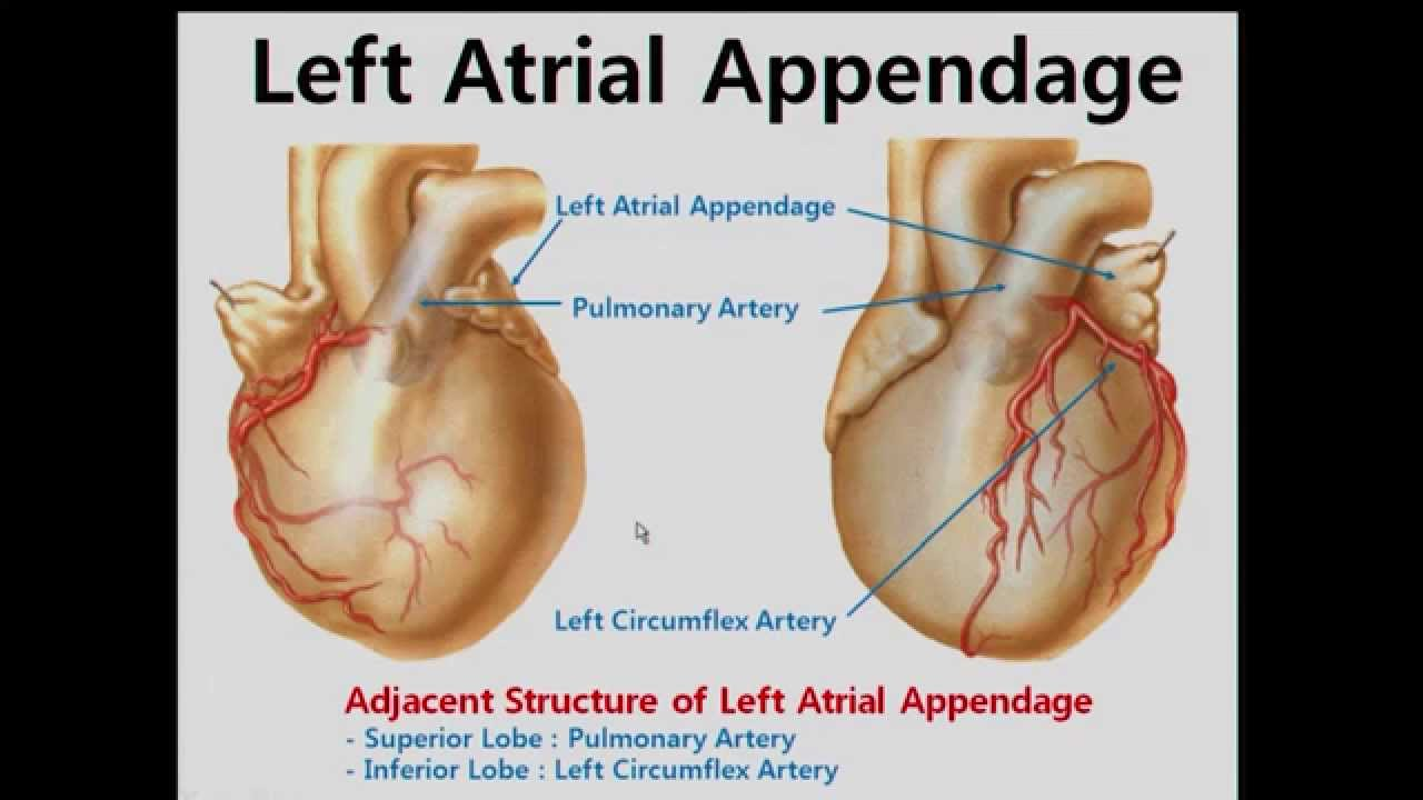Cardiac Anatomy and Electric Mapping for Ablation of Atrial ...