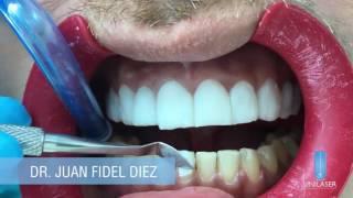 Unilaser | Diseño de Sonrisa paso a paso thumbnail