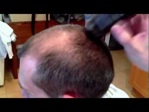 Смотреть всем ЛЫСЫМ bald methodology
