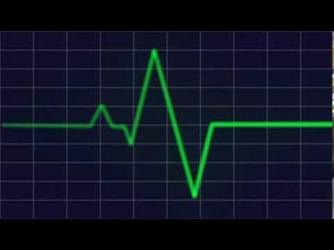 Heart beat monitor HD