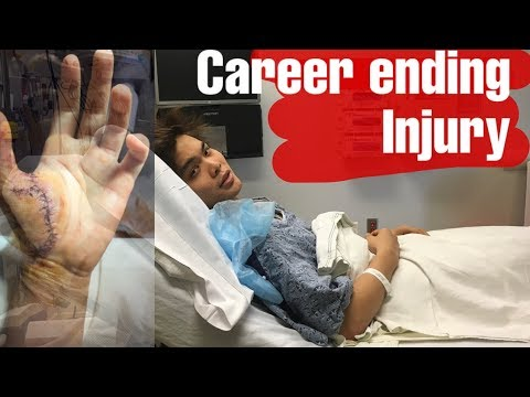 I Injured My Hand // An Interview About How It Happened And The Recovery