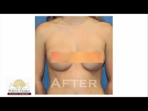 BREAST AUGMENTATION - PONTE VEDRA PLASTIC SURGERY