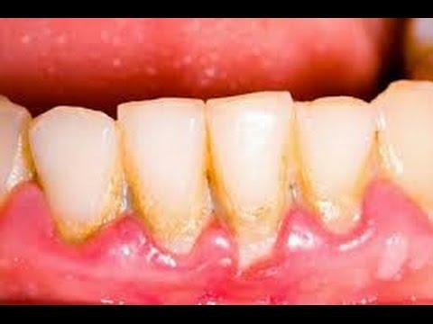 Luar Biasa Inilah Cara Membersihkan Karang Gigi Secara Alami Dan
