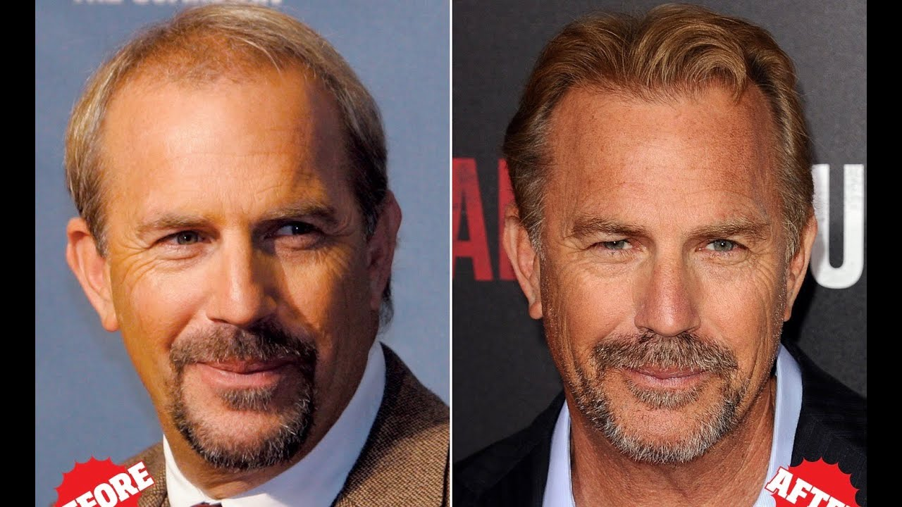 Top 10 Celebrity Hair Transplants