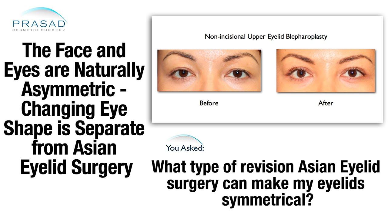 Asian Eyelid Surgery Creates an Eyelid Crease; Almond Eyes Surgery ...