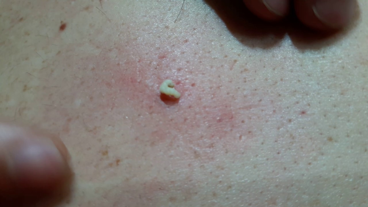 huge blackhead extracted on back - YouTube