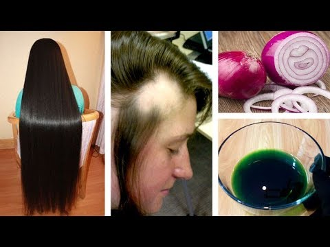 Get Long Thicken Hair Onion Ginger Oil Magical Home Remedy To Hair Regrowth Urdu Hindi