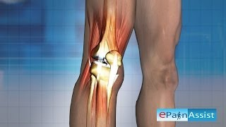What is Knee Arthroscopy & How is it Done?