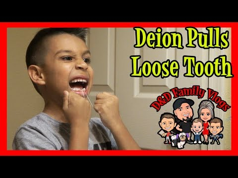 DEION PULLS HIS TOOTH OUT | D&D FAMILY VLOG