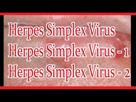 Вирус простого герпеса 1 и 2 типа: что это?