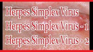 Herpes Simplex Virus : Herpes Simplex Virus 1 (HSV1) : Herpes Simplex Virus 2 (HSV2)