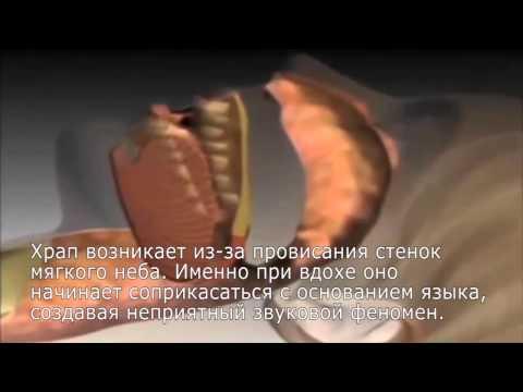 Народные средства для лечения насморка - Лечение насморка