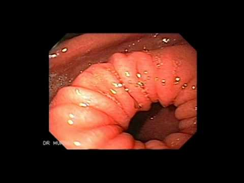Upper Gastrointestinal Endoscopy