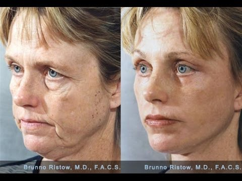 Natural Facelift Facial Exercises  Lip Plumper   Get Full, Beautiful Lips with Faceworks