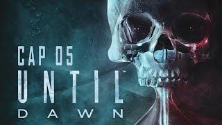 (Livestream) Until Dawn Pt 5