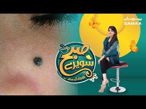 Tillon Ke Raaz | Subh Saverey Samaa Kay Saath | Sanam Baloch | SAMAA TV