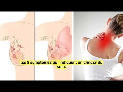 Download Les 5 symptômes qui indiquent un cancer du sein
