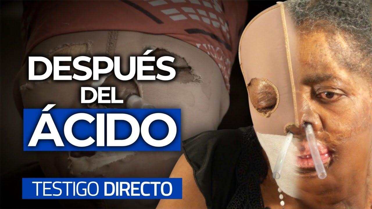 CONSUELO: la bella detrás de la máscara - Testigo Directo