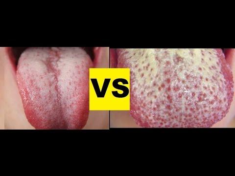 white coated tongue vs. oral thrush - youtube, Skeleton
