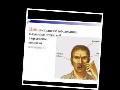 Почему человек болеет цингой презентация