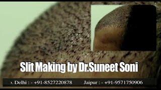 Medispa Hair Transplant Cost Jaipur-Delhi-India-USA    International Patients by Dr Suneet Soni