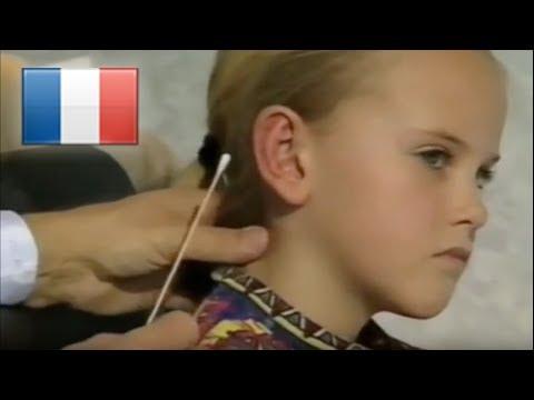 hqdefault - Opération des oreilles décollées