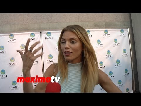 AnnaLynne McCord On Adult Acne, Food Allergies, Not Being Politically Correct