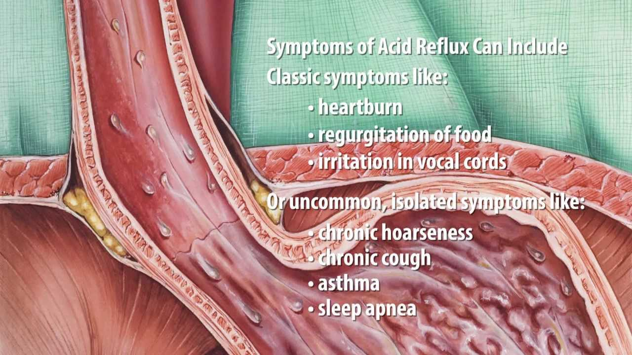 What Is Acid Reflux Acid Reflux Explained By Dr Simon Cofrancesco Youtube