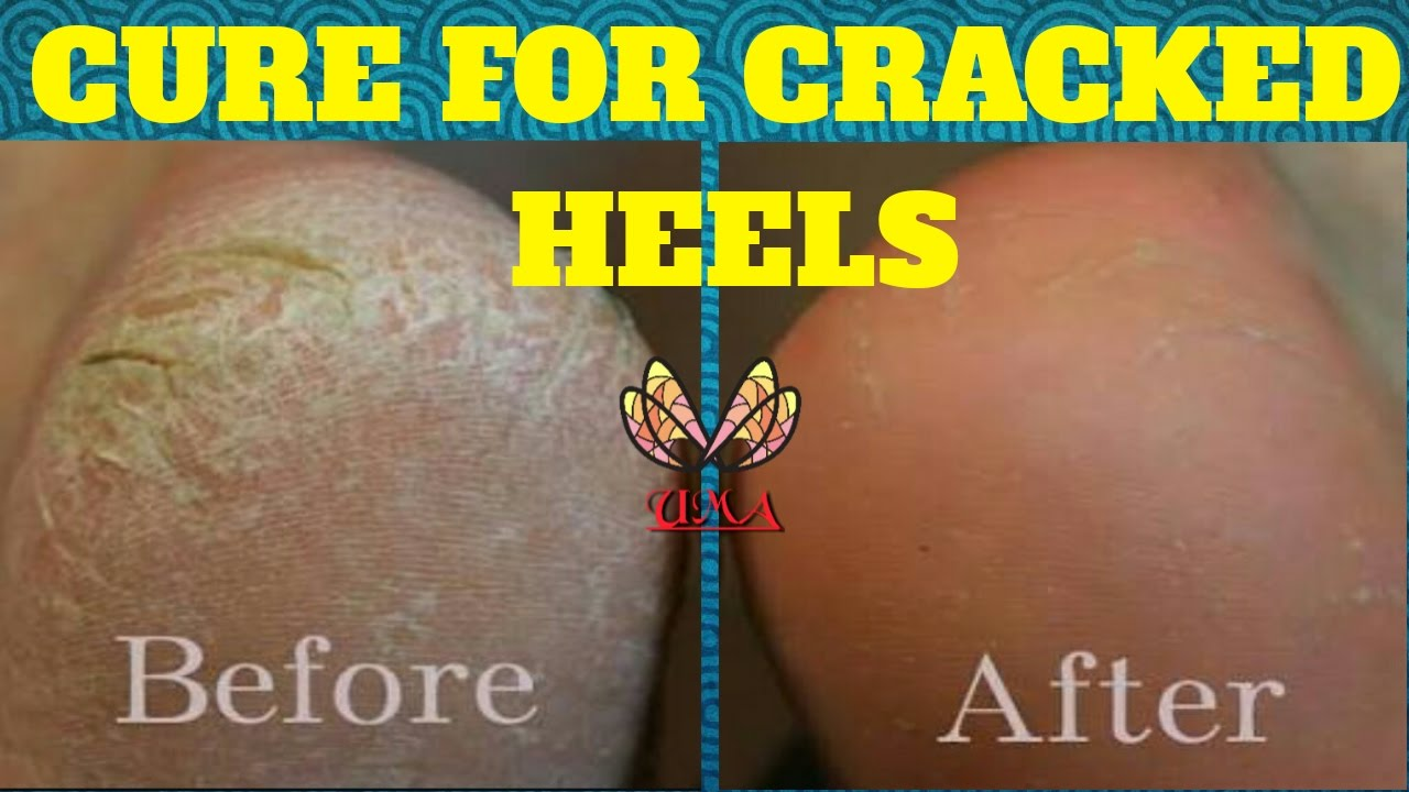 crack hack difference